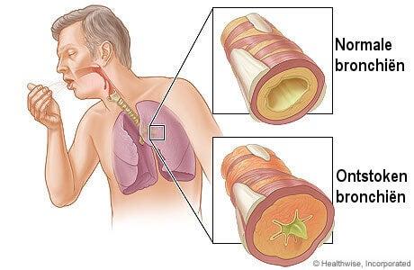 chronische-bronchitis