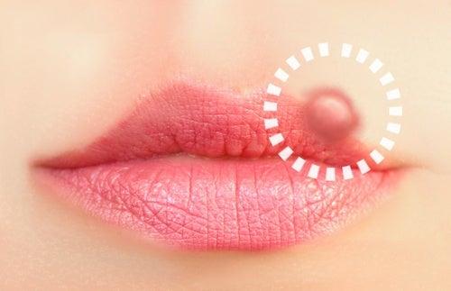 10 natuurlijke behandelingen tegen koortsblaasjes
