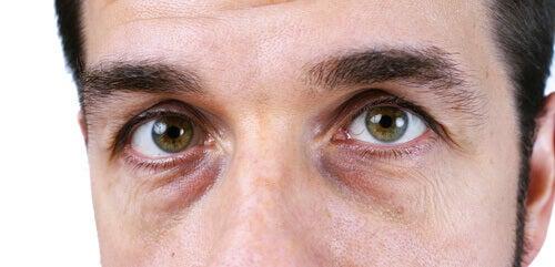 Donkere of gele huid onder je ogen