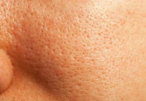 Remedies om je poriën natuurlijk te sluiten