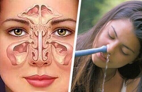 Simpele en natuurlijke manieren om sinusitis te behandelen