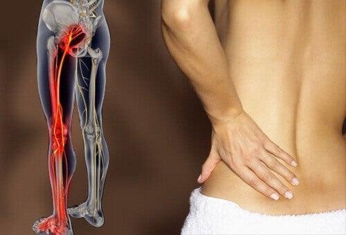 Hoe ischias en lage rugpijn behandelen?