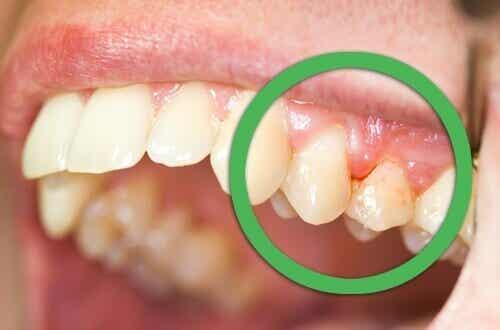 Natuurlijke remedies tegen tandvleesontsteking