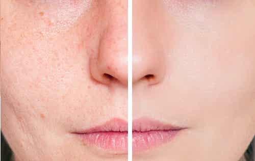 Natuurlijke remedies tegen acnelittekens