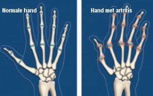 Artritis verhelpen met wonderolie