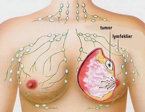 De 5 meest voorkomende types kanker bij vrouwen