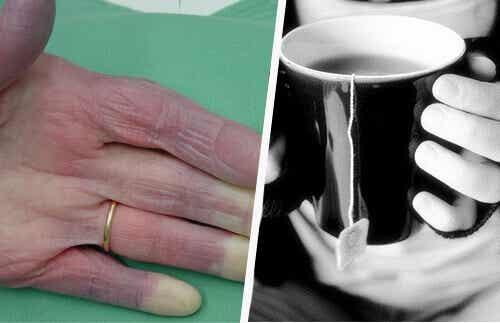Een aantal mogelijke oorzaken van koude handen