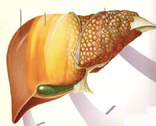 Fruit dat helpt tegen leververvetting