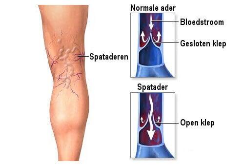 symptomen spataderen benen