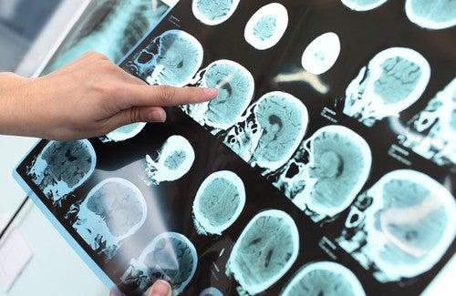Kan je Alzheimer voorkomen?
