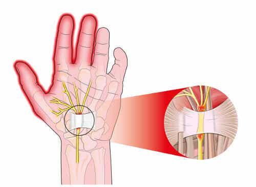 5 tips om pijn van carpaletunnelsyndroom te verlichten