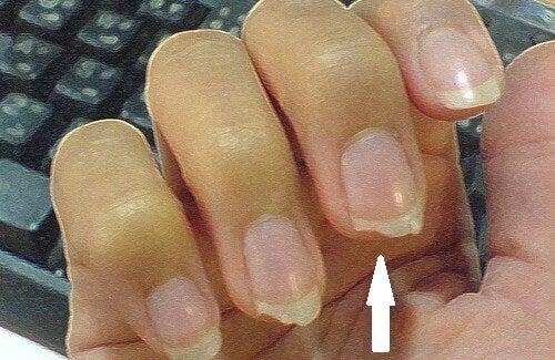 Afbrekende nagels voorkomen met deze tips