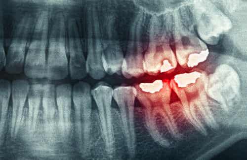 Oorzaken en gevolgen van tandenknarsen