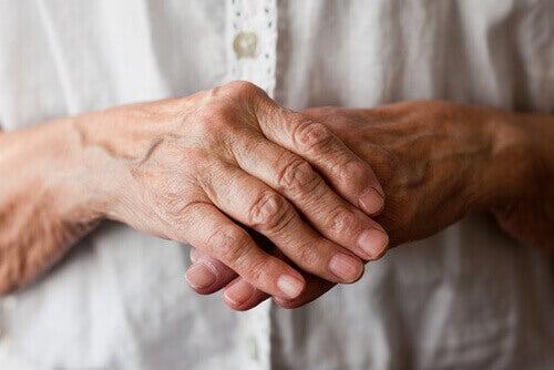 handen met artritis