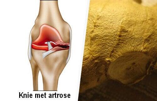 Knie met Artrose
