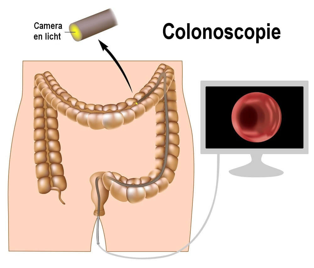 Colonoscopie