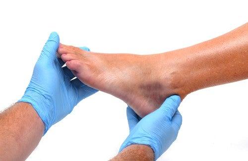 Gezwollen enkels en voeten: oorzaken en preventie