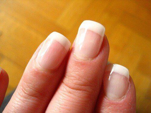 Wat zeggen je nagels als ze verkleurd zijn