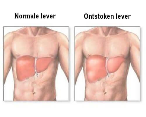 Is jouw lever ontstoken?