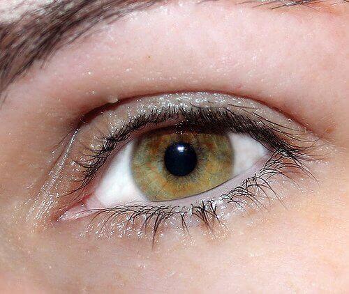 Ook ogen kunnen aangeven dat een lever ontstoken is