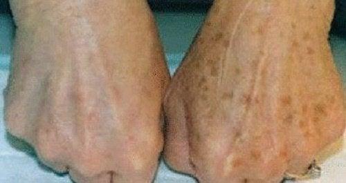 Verminder ouderdomsvlekken op je handen