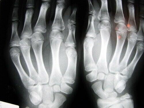 röntgenfoto artritis handen