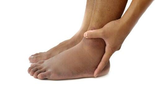 Gezwollen enkels of voeten door onvoldoende werking van de aders