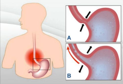 Hoe kun je brandend maagzuur stoppen