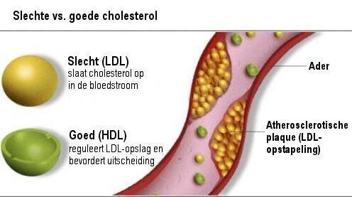 cholesterol-goed-slecht2
