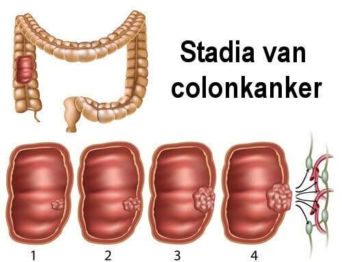 Stadia van Colonkanker