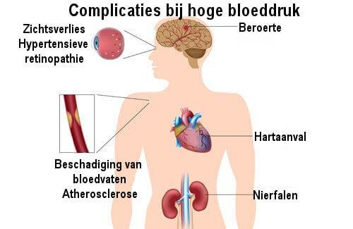 De beste manieren om hoge bloeddruk te bestrijden