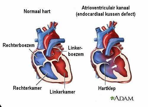 7 symptomen van hartruis die je moet kennen
