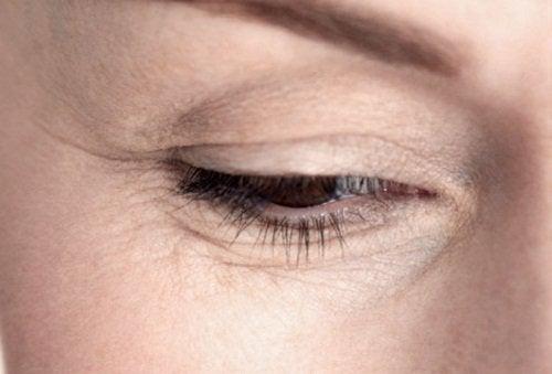 Rimpels rond een oog
