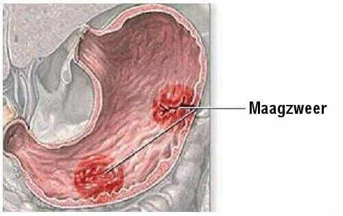 Symptomen van maagzweren