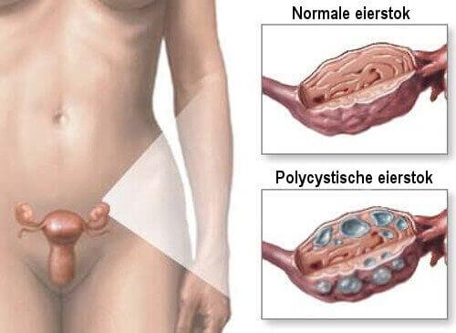 Remedies voor polycysteus-ovariumsyndroom