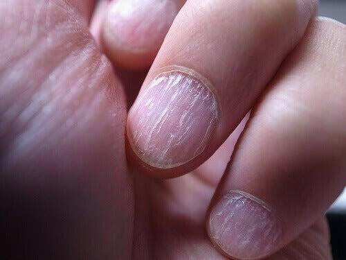 vingernagek met schimmel