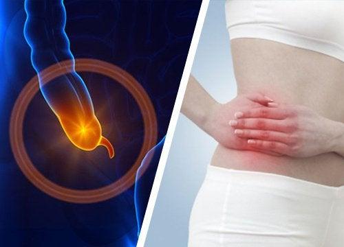 Symptomen om een appendicitis te herkennen