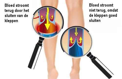 De bloedcirculatie in je armen en benen verbeteren