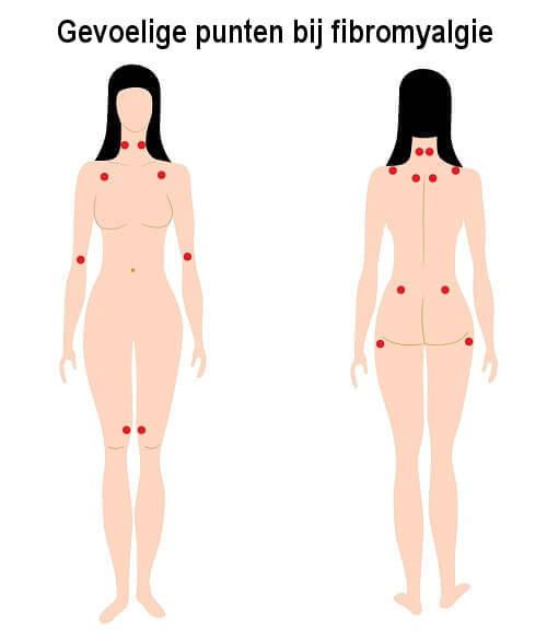 Gevoelige punten bij fibromyalgie