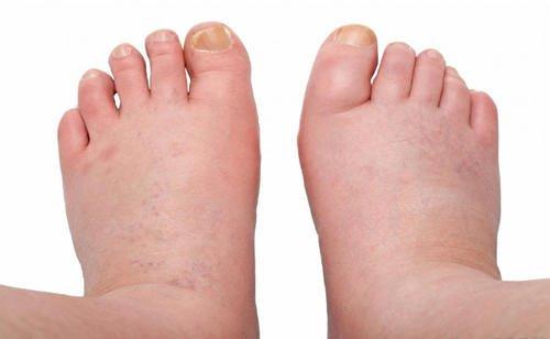 6 remedies tegen zwelling in de enkels, voeten en benen
