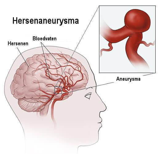hersenen-aneurysma2