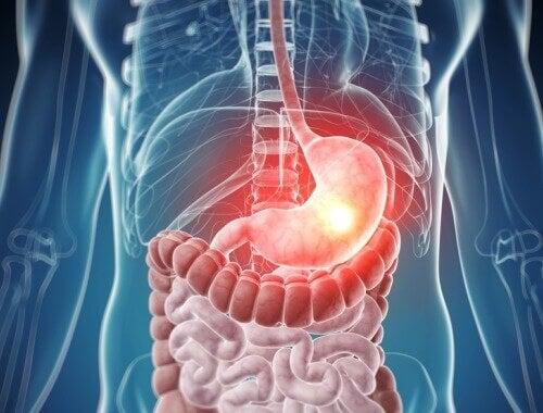 Is jouw lichaam vergiftigd?