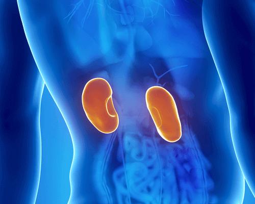 Afbeelding van ontstoken nieren