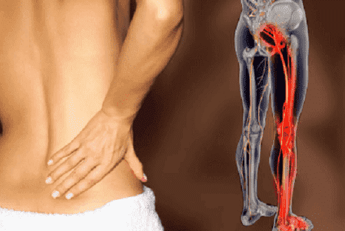 Tips en infusies om ischiaszenuw te behandelen