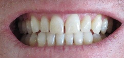 Gevolgen van tandenknarsen