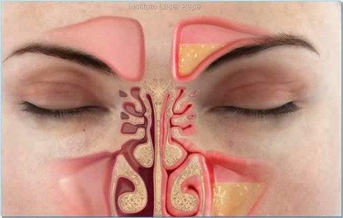 Snel een neusverstopping aanpakken