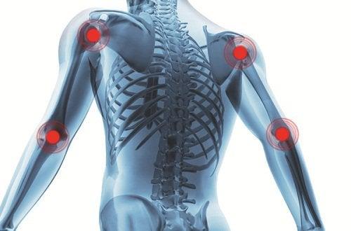 Artritis en Gewrichtspijn