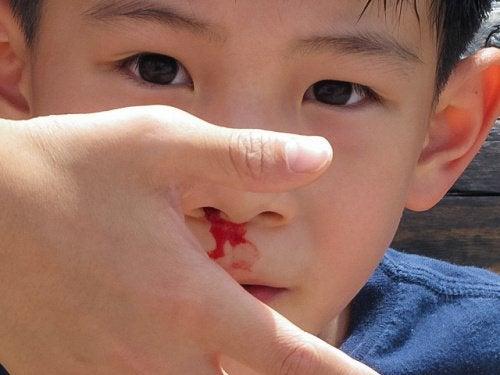 Kind met Bloedneus