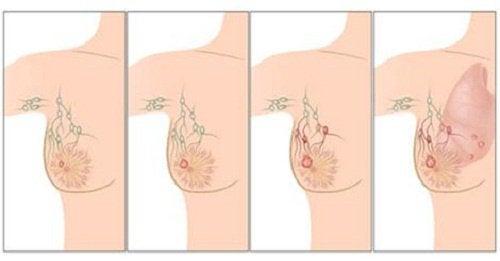 Oorzaken van borstkanker die je moet kennen