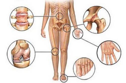 5 natuurlijke behandelingen voor gewrichtspijn